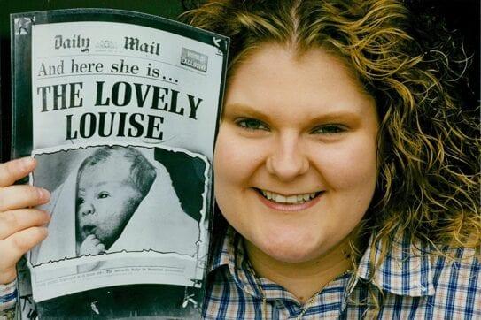 Louise Brown segura o jornal onde foi noticiado o nascimento do primeiro bebê de proveta do mundo.