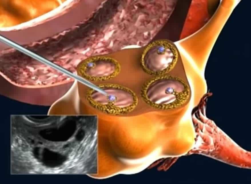 Processo de aspiração do folículo, com agulha acoplada ao ultrassom, para Fertilização in Vitro..
