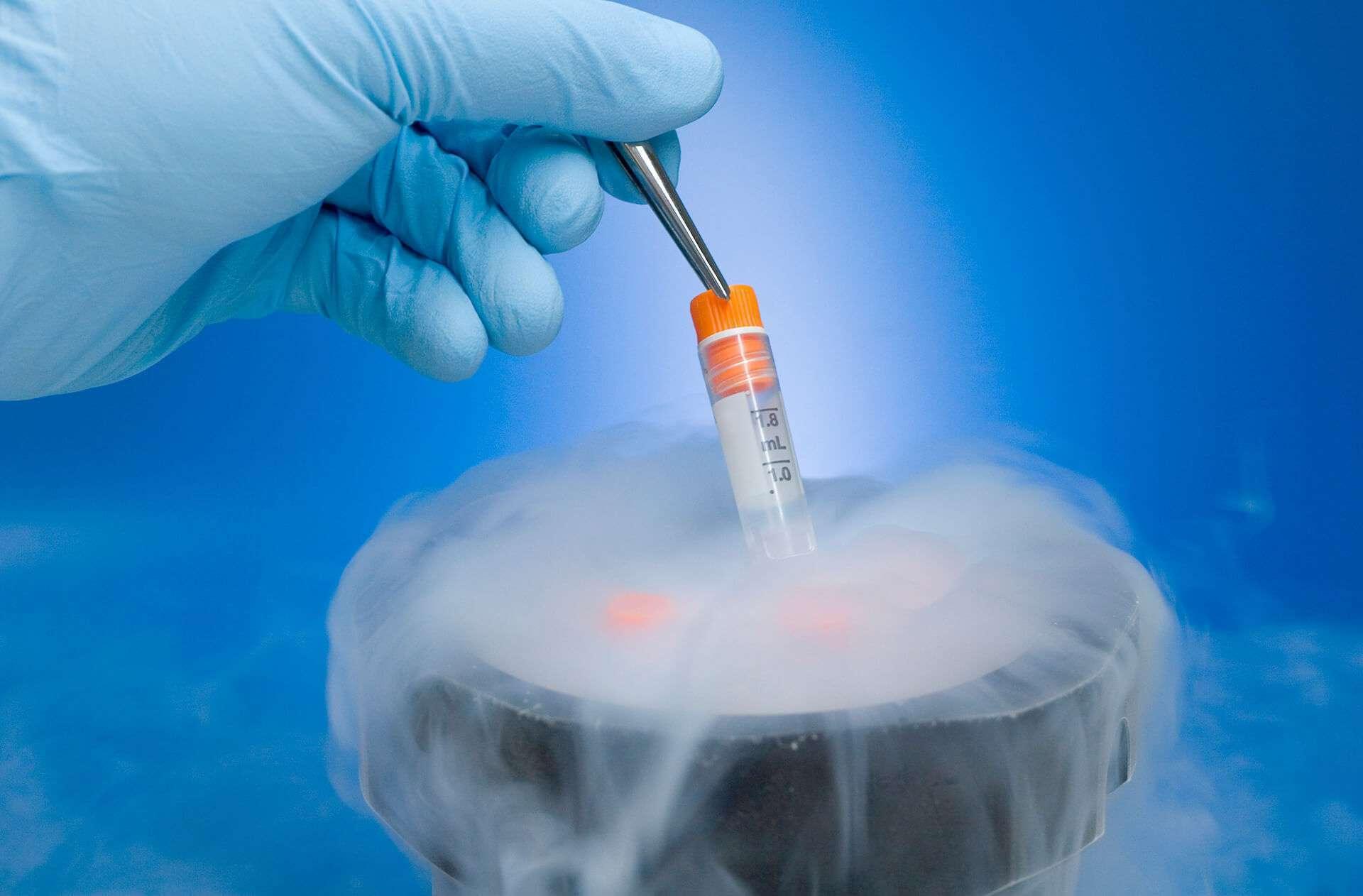 O congelamento de sêmen é indicado para homens em tratamento de câncer.
